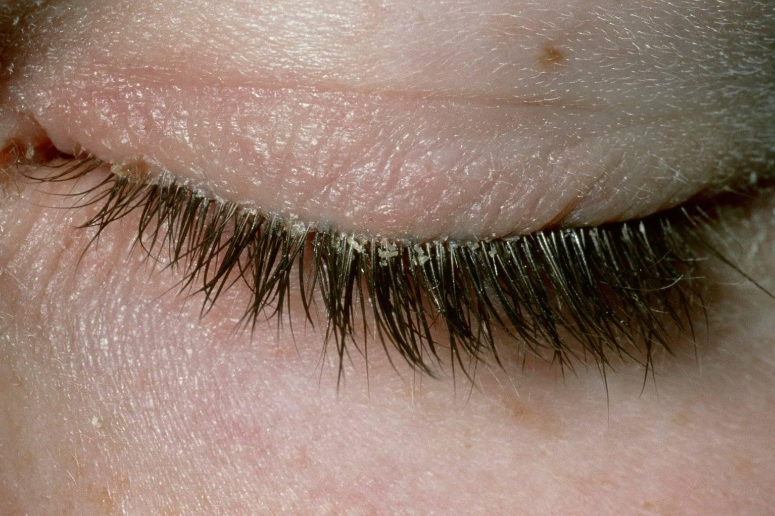 Глазной клещ (демодекоз) - лечение в домашних условиях