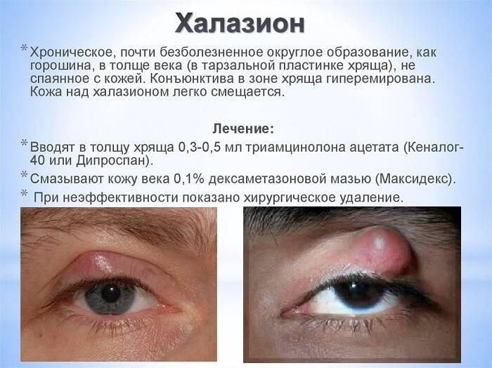 Как убрать воспаление около глаза
