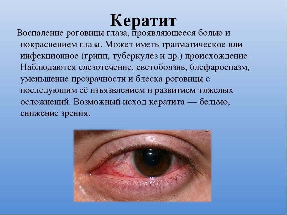 Глазные инфекции: виды, симптомы, лечение