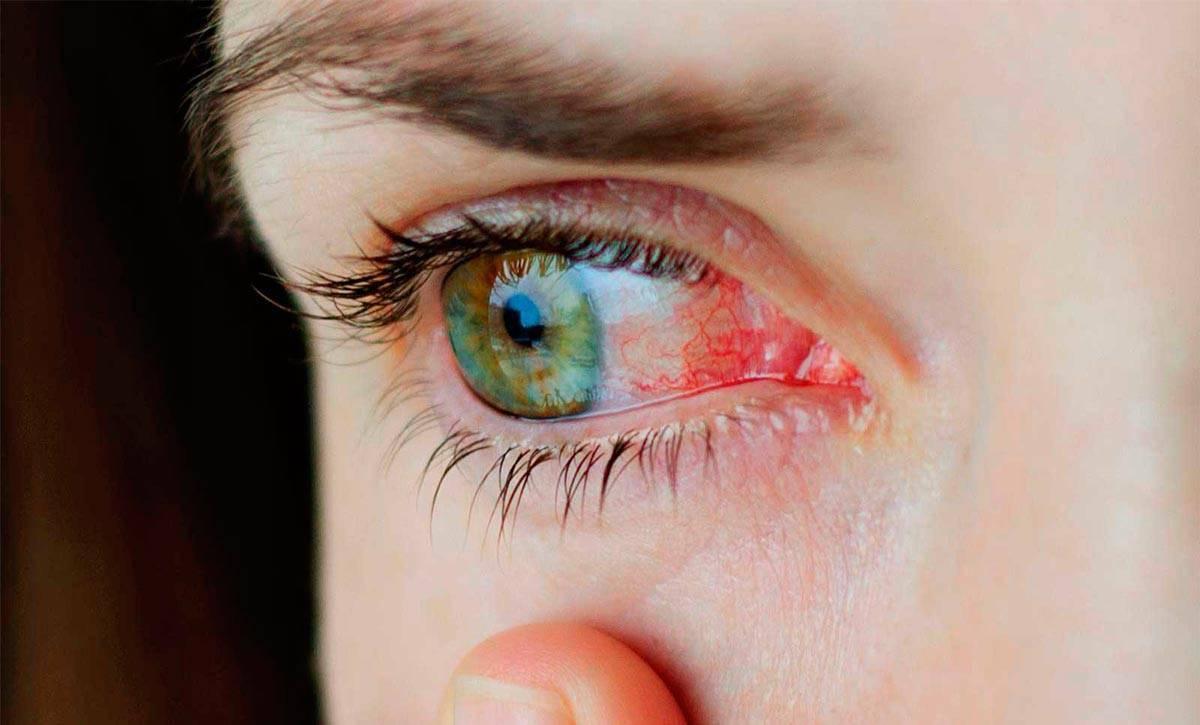 Воспалился глаз у ребенка чем лечить в домашних условиях