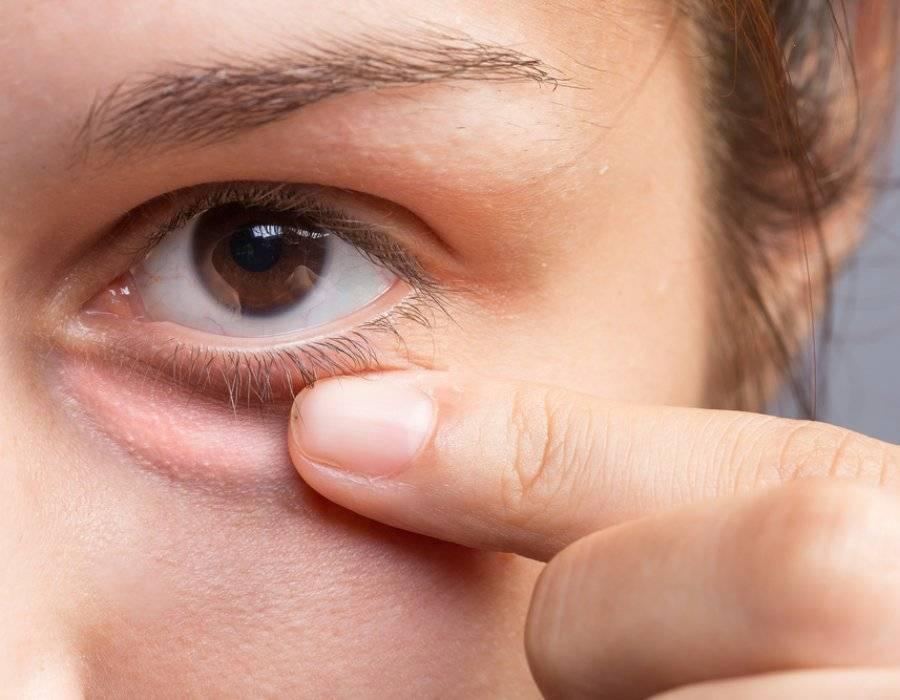 Что делать, если болит внешний или внутренний угол глаза