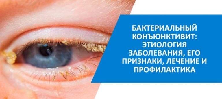 Детские глазные капли от коньюктивита: средства, антибиотики, чем лечить, можно ли гулять, лечение