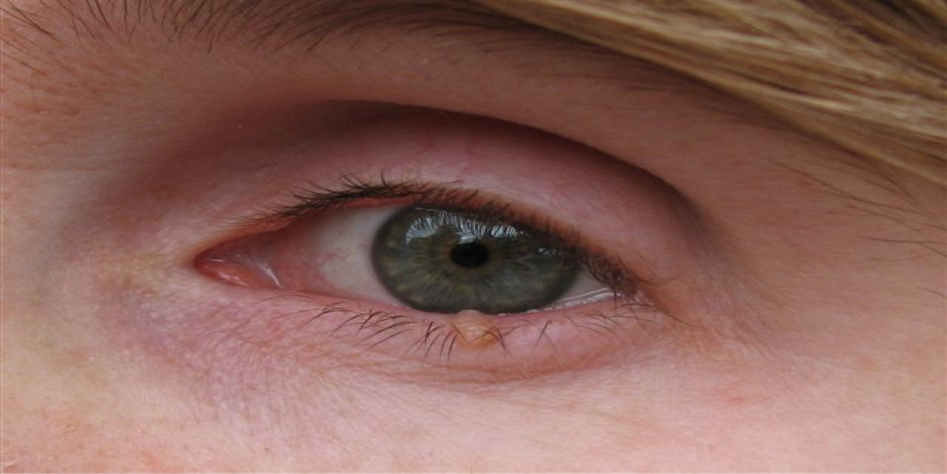 Птеригиум: заболевание глаз, нарост на роговице, его причины и способы иссечения птеригия