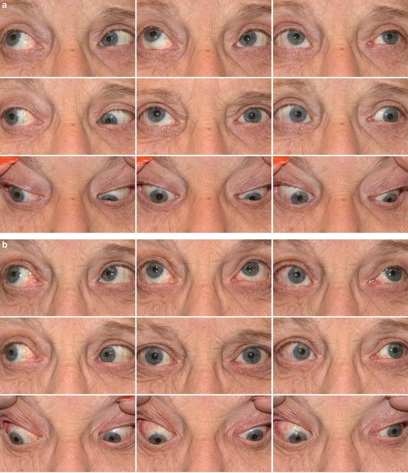 Двоится в глазах (диплопия): причины и лечение