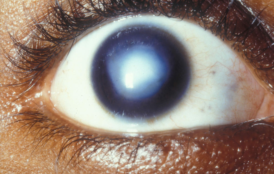 Левый глаз стал мутно видеть после алкоголя и по утрам: что такое помутнение, когда обращаться к врачу