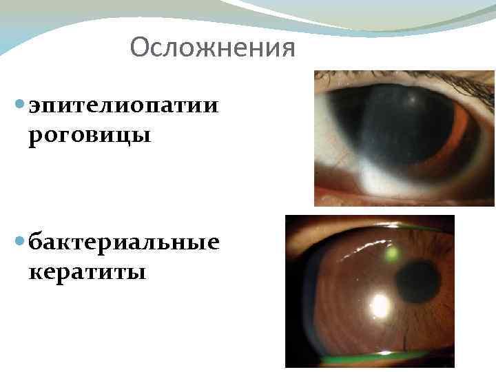 Заболевания глаз. часть 2. заболевания роговицы, хрусталика, стекловидного тела, радужной оболочки и сетчатки
