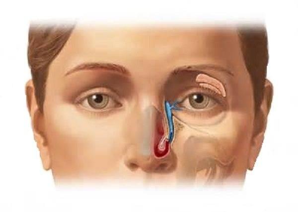Массаж слезного канала у взрослых