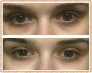 Синяки под глазами у ребенка. причины
