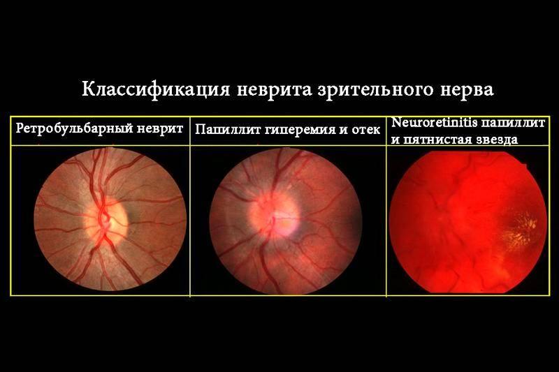 Неврит зрительного нерва: симптомы и лечение, ишемический