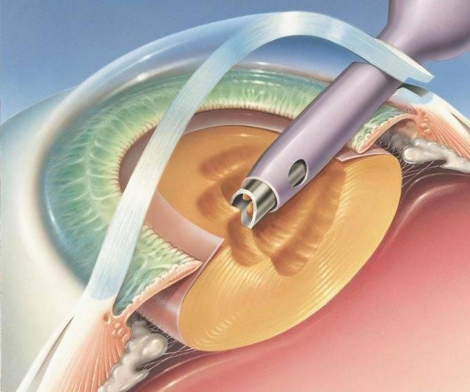 Фэк: ультразвуковая операция, факоэмульсификация катаракты с имплантацией интраокулярной линзы, иол что это такое в офтальмологии