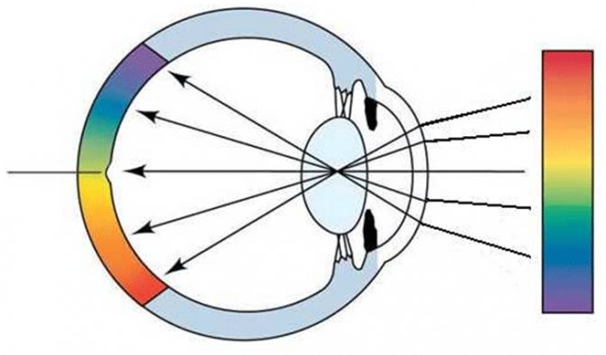 Как делают операцию по исправлению близорукости