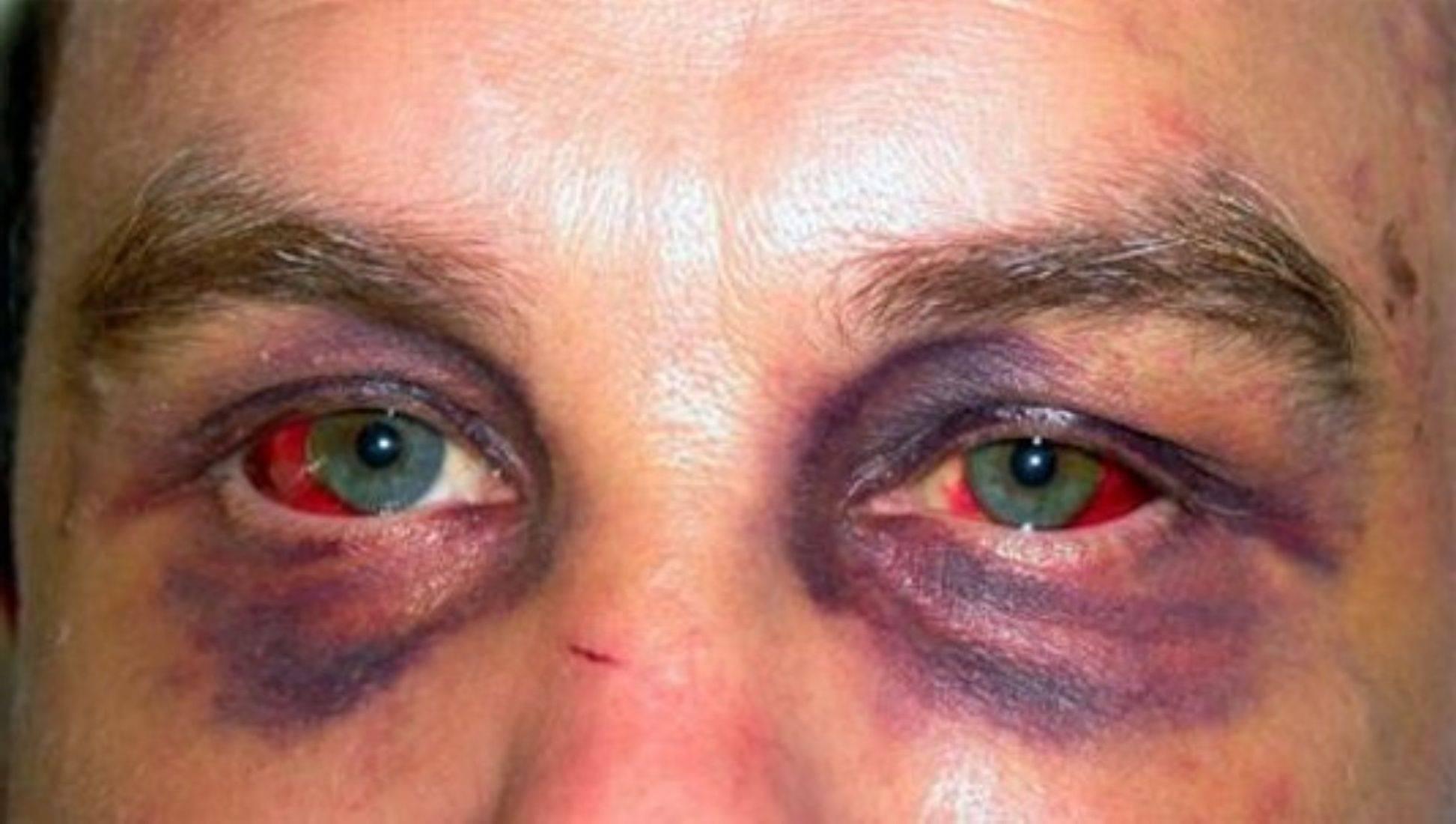 Проникающее ранение глаза - первая помощь, последствия