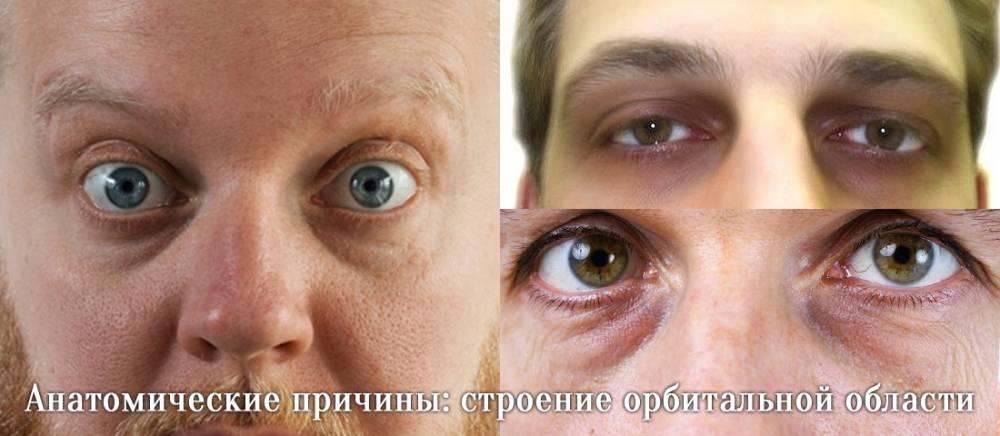 Причины и лечение мешков и синяков под глазами, устранение проблемы в домашних условиях