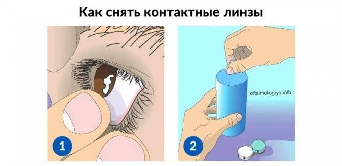 Как надевать линзы в первый раз: пошаговая инструкция для новичков, как снимать правильно, подготовка, фото, видео
