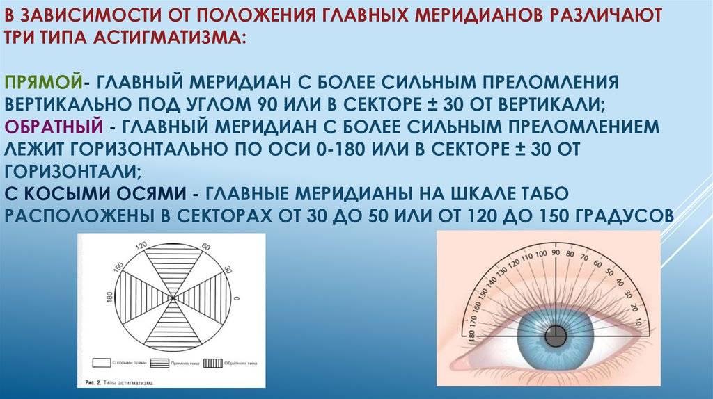 Линзы при астигматизме: особенности и правила подбора — глаза эксперт