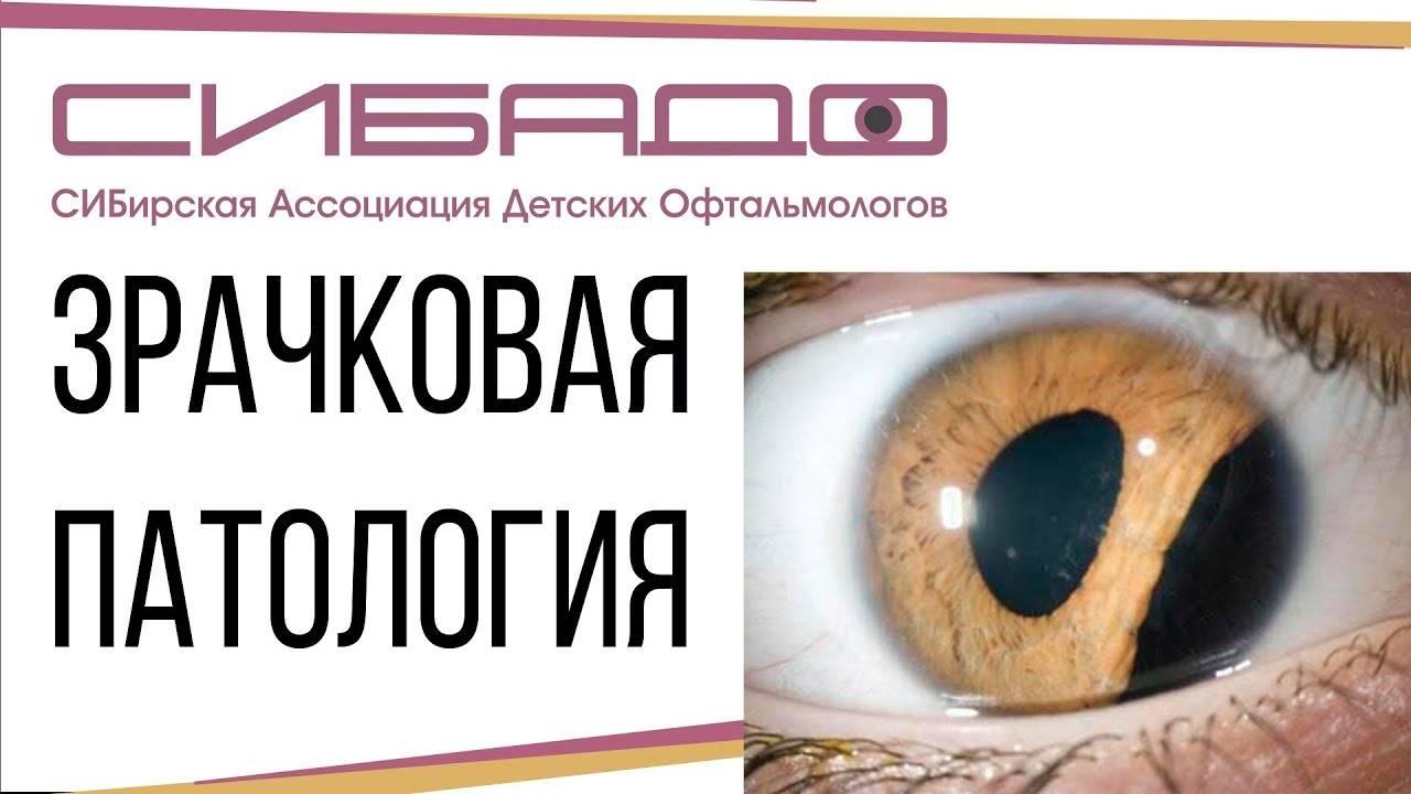 Нейроофтальмология — офтальмология