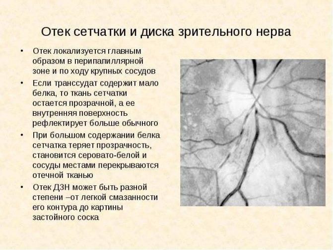 Неврит зрительного нерва: виды, симптомы и лечение