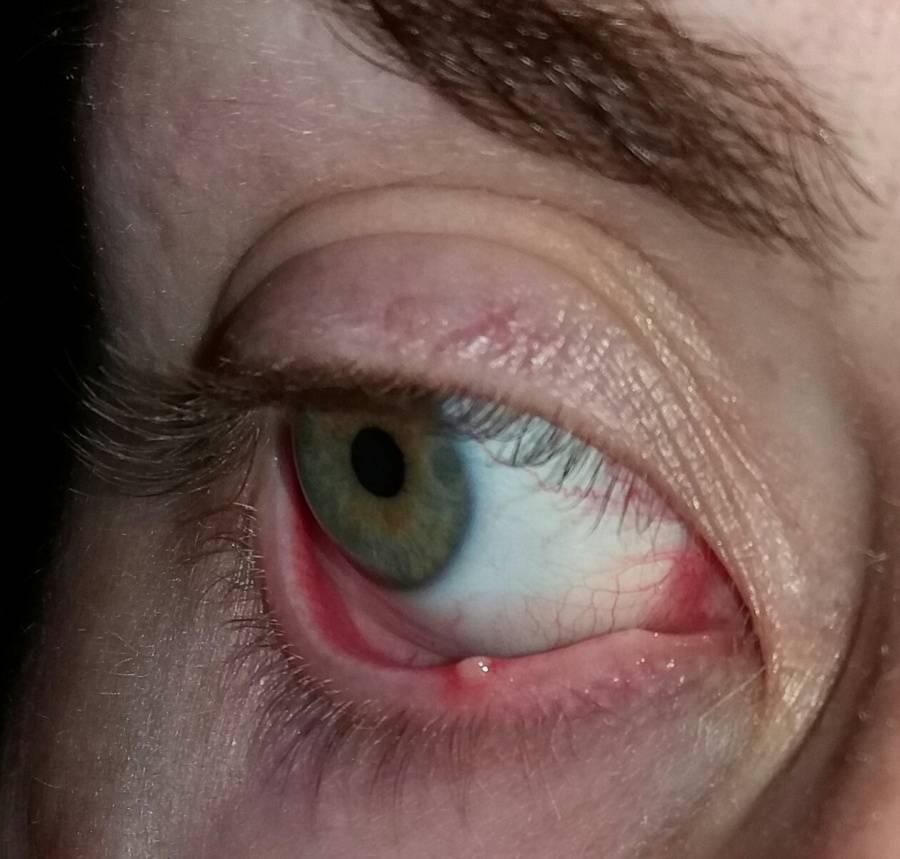 Ячмень внутри глаза - как лечить быстро дома ячмень внутри глаза, что делать и как лечить   медицинский портал spacehealth