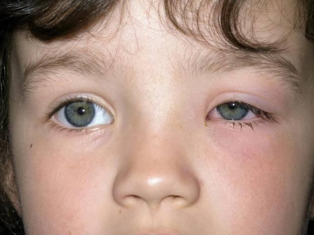 Аллергический конъюнктивит: признаки, симптомы, лечение, фото