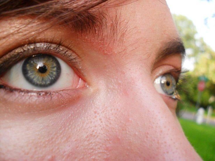 Гетерохромия: можно ли ей заболеть и почему глаза бывают разного цвета