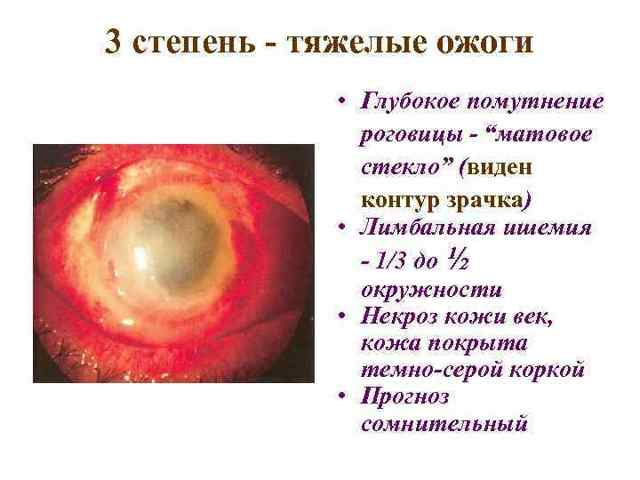 Что делать когда болят глаза от сварки