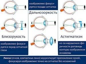 Способы коррекции дальнозоркости – какой лучше выбрать и почему