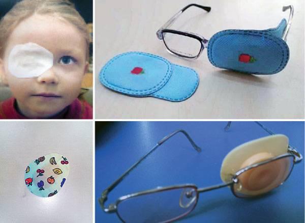 Окклюдер для глаз детский и взрослый: что это такое, правила пользования