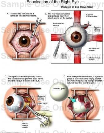 Энуклеация (удаление глазного яблока): описание операции