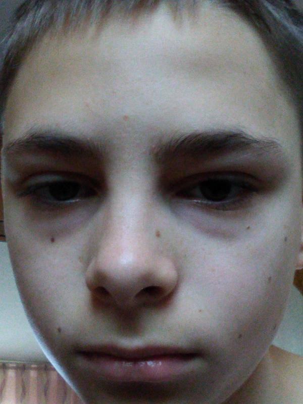 Синяки под глазами у мужчин: причины и лечение oculistic.ru