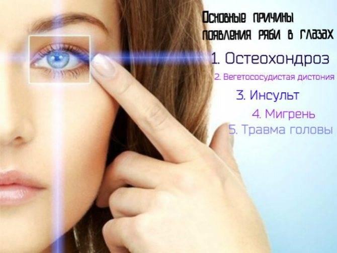 Мерцание в глазах и головная боль: причины, симптомы (рябь, блики, темнеет), лечение, профилактика, диагностика