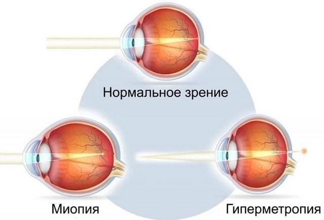 Миопия высокой степени с астигматизмом: причины, симптомы и способы лечения