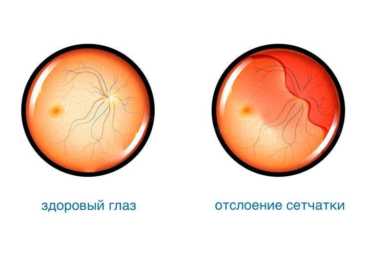 4 группы причин отслоения сетчатки глаза и способы срочного лечения