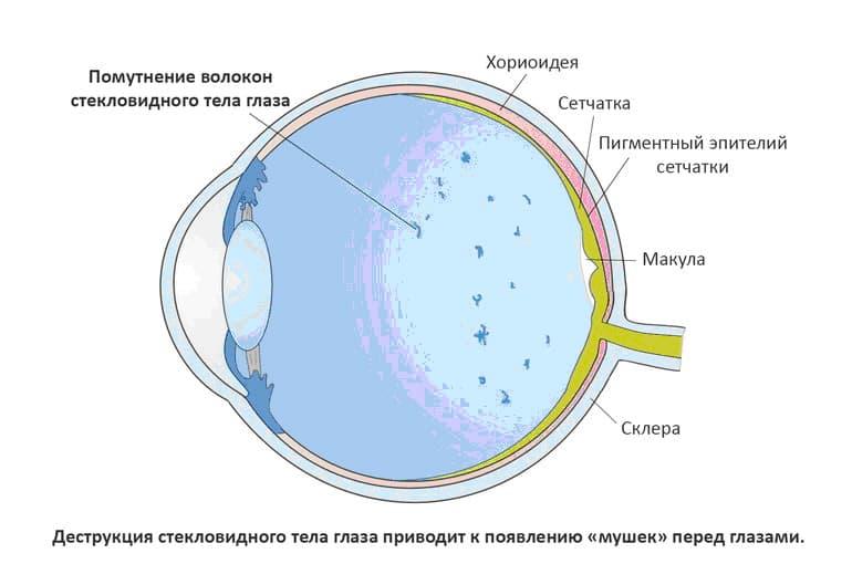 Стекловидное тело глаза: болезни, причины, симптомы и лечение деструкции