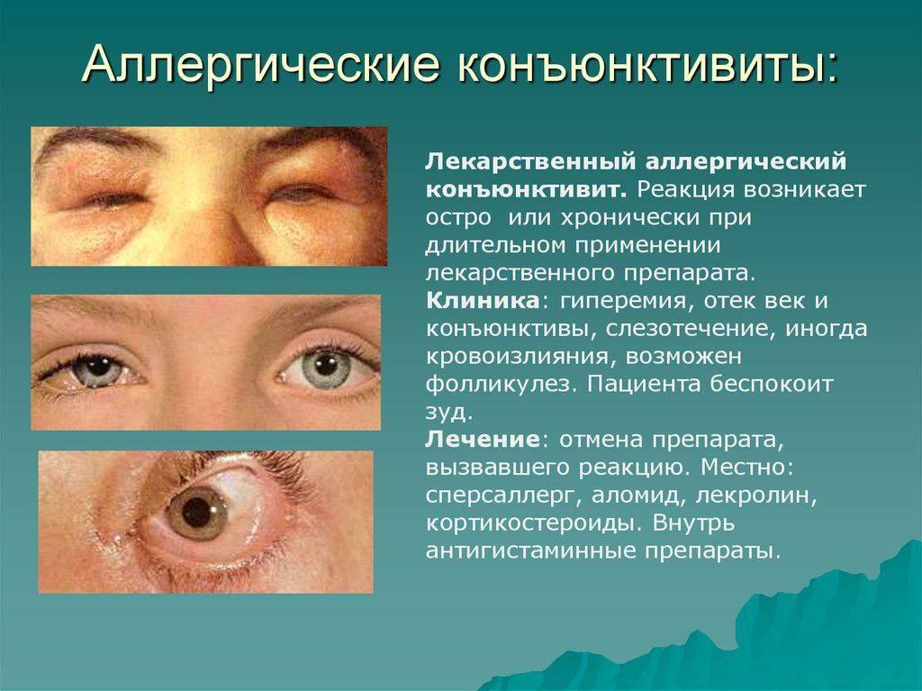 Блефарофимоз глаз. другое. медицина, физкультура, здравоохранение. 2012-03-24