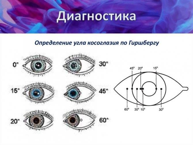 Косоглазие (гетеротропия, страбизм)
