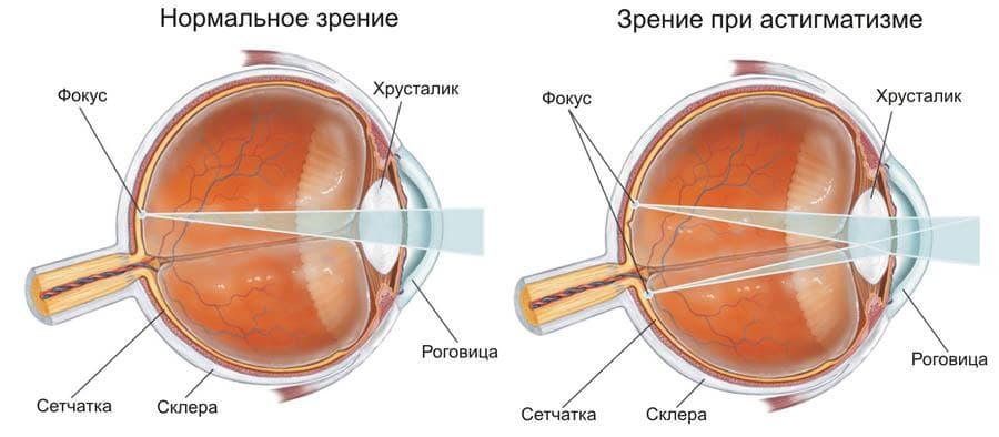 Острота зрения - что это, определение