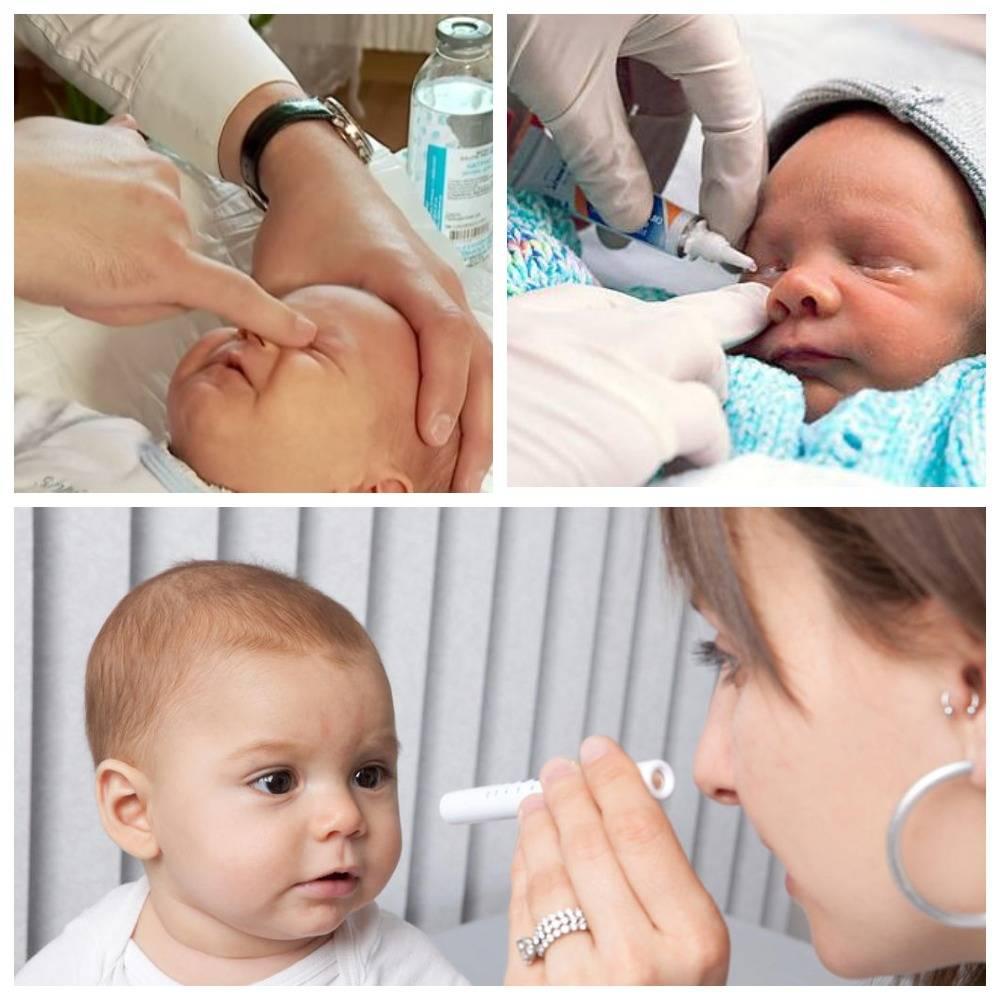 Массаж слезного канала у новорожденных: как делать при закупорке и непроходимости