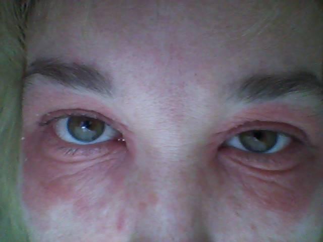Красные точки под глазами