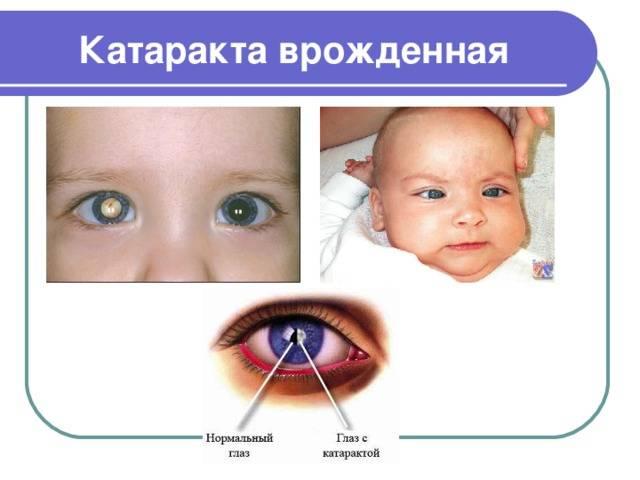 Что такое врожденная катаракта: причины и лечение