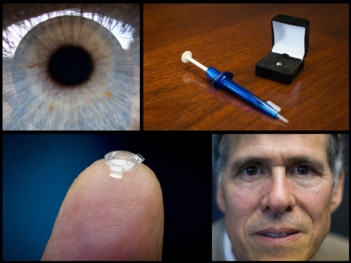 Кто и когда изобрел контактные линзы