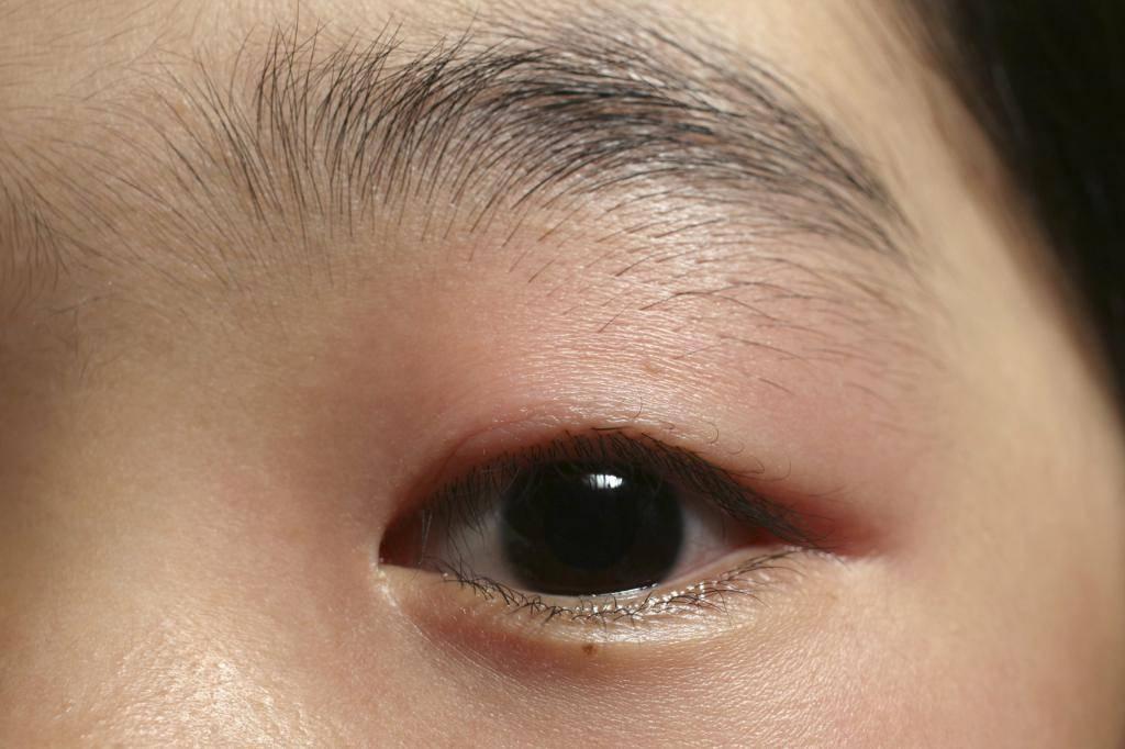 Чем лечить ячмень на глазу при беременности