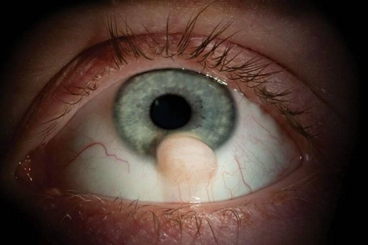 Эндофтальмит и панофтальмит глаза: симптомы, способы лечения