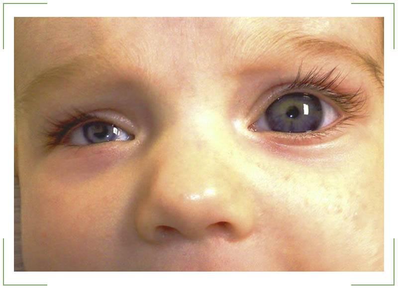 Гемофтальм глаза: причины, симптомы, лечение и профилактика