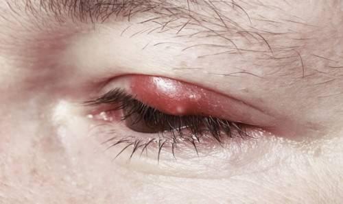 Герпес на глазу, причины возникновения и способы его лечения