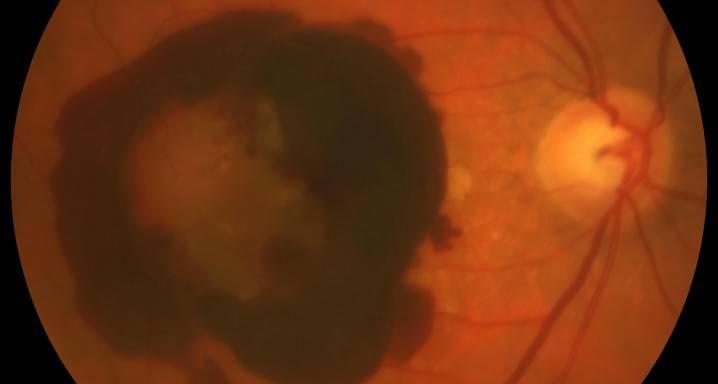 Кровоизлияние в стекловидное тело глаза лечение, ответы врачей, консультация