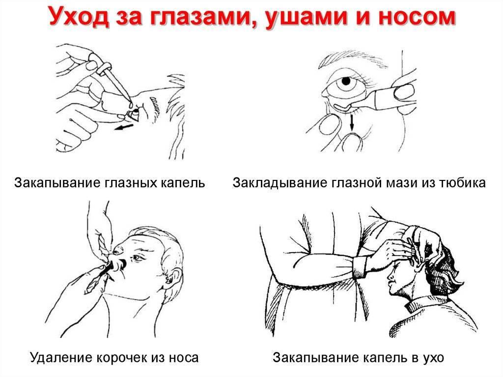 Как правильно закапать капли в глаза