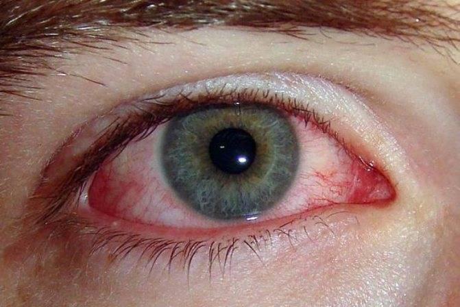 Пора приниматься за лечение: глаза слезятся и красные. что делать в такой ситуации?