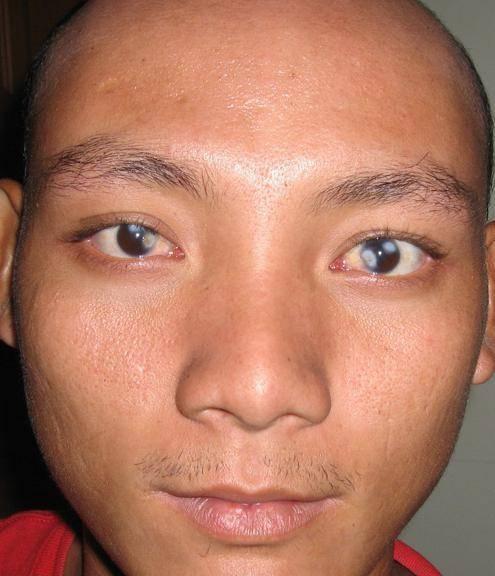 Помутнение роговицы глаза (бельмо, лейкома): что это такое