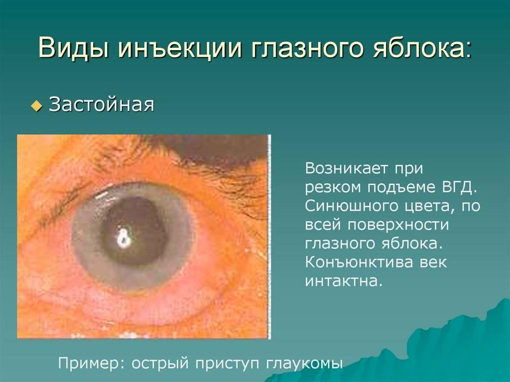 Уколы в глаза: для сетчатки, интравитреальная инъекция что это, как делают под яблоко, виды, больно или нет