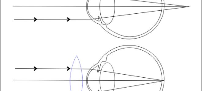 Анизометропия - что это такое?- сага-оптика